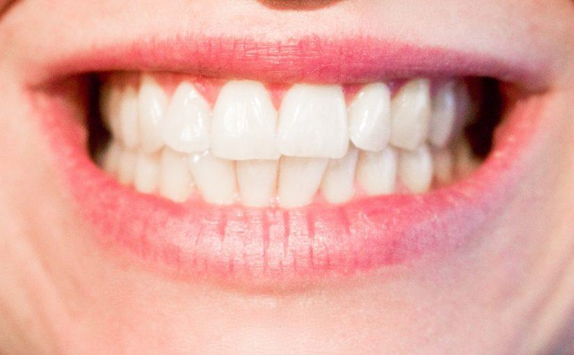 Aktualna technika wykorzystywana w salonach stomatologii estetycznej zdoła sprawić, że odbierzemy śliczny uśmieszek.